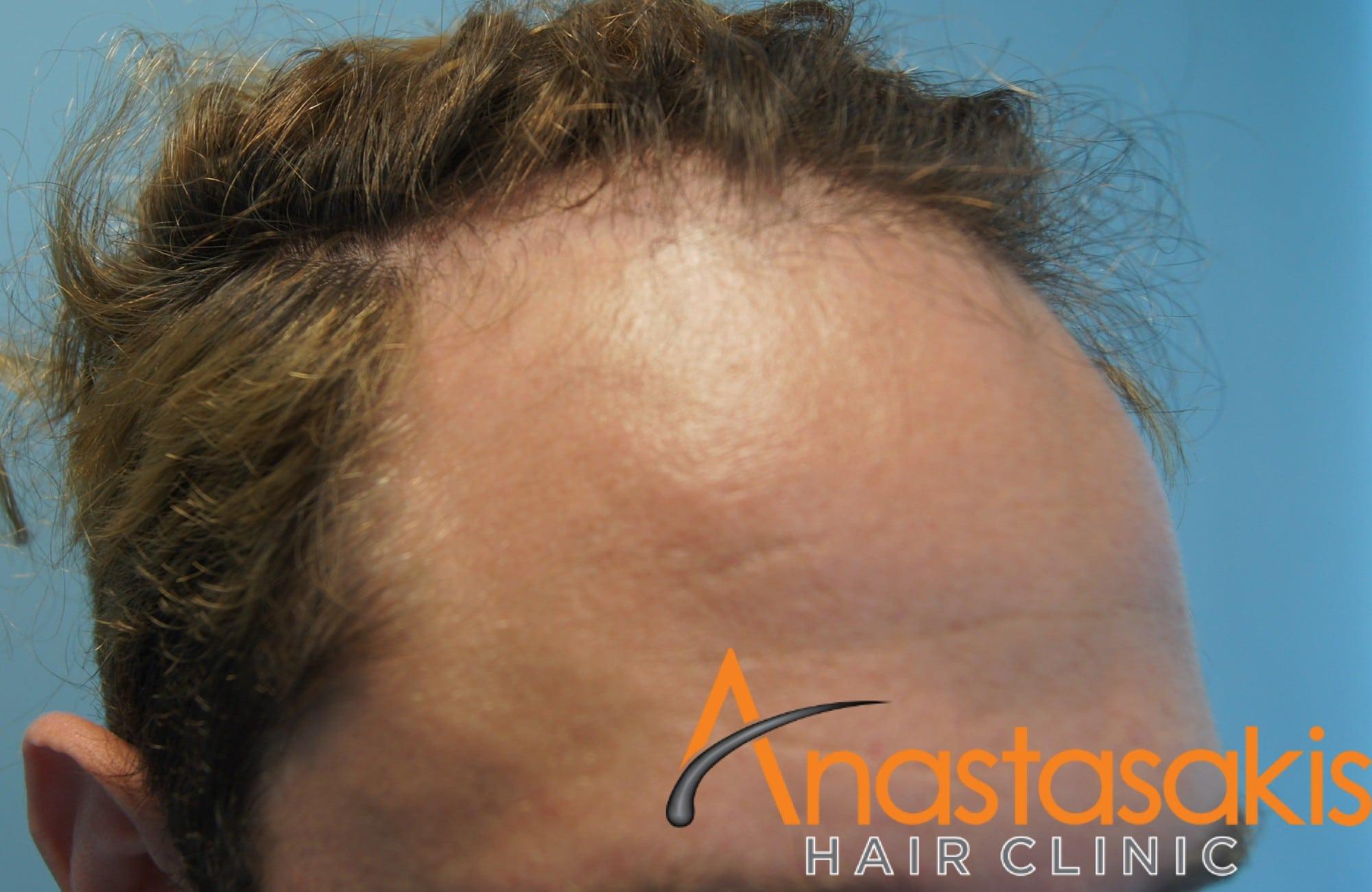 δεξης κρόταφος ασθενούς πριν τη μεταμόσχευση μαλλιων με 2200 Fus