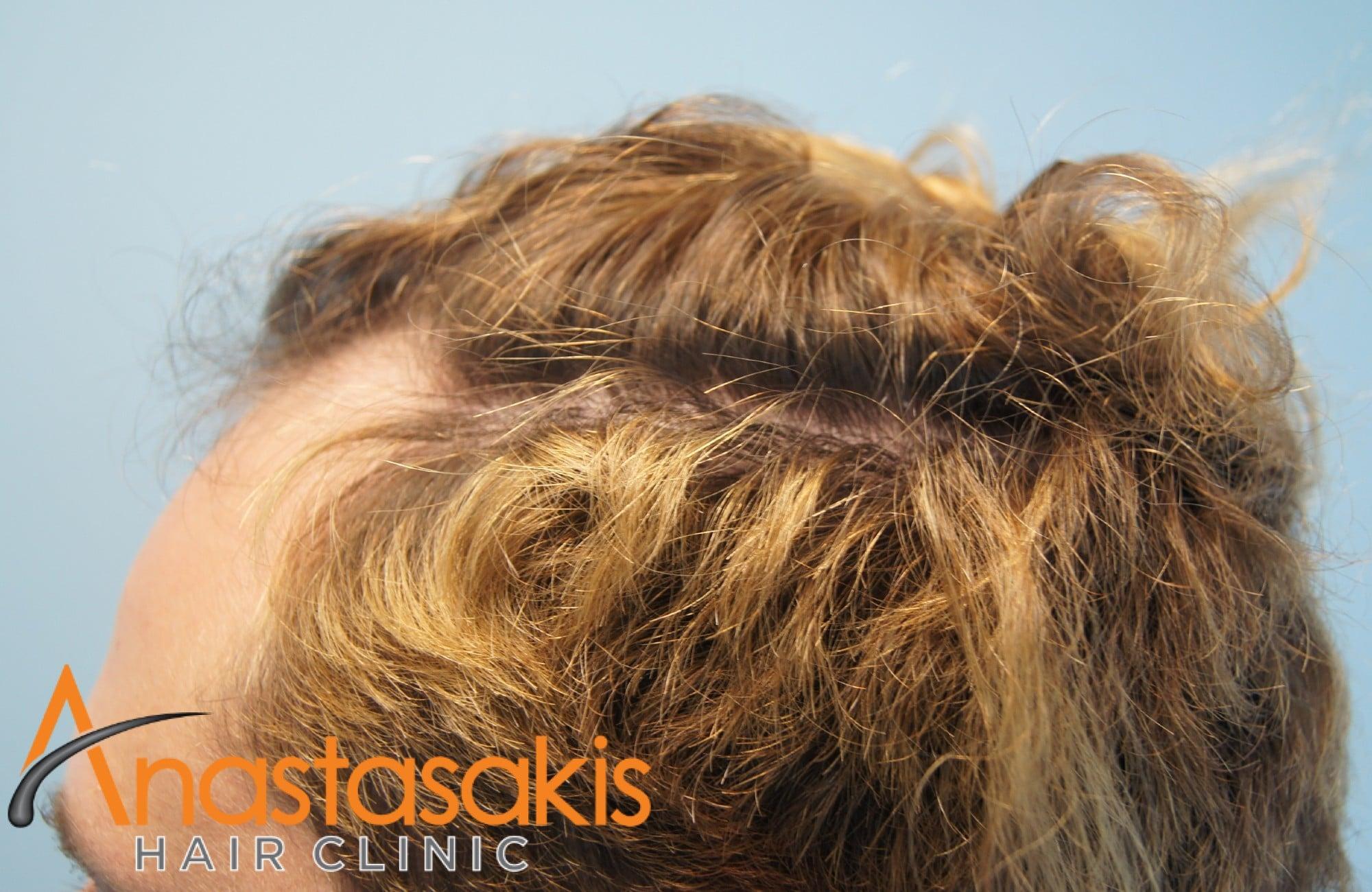 αριστερο προφιλ ασθενούς πριν τη μεταμόσχευση μαλλιων με 2200 Fus