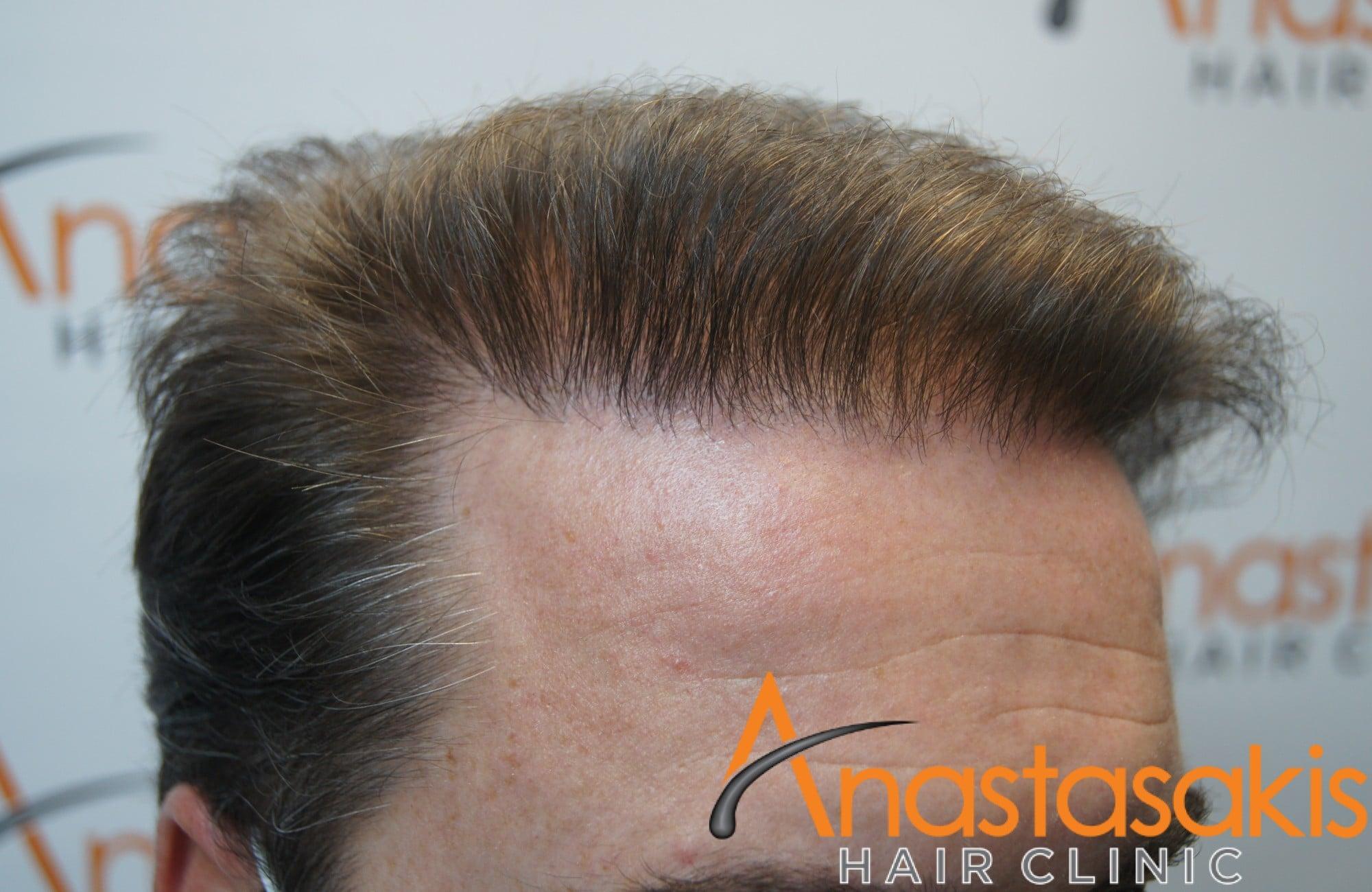 ασθενής μετα τη μεταμόσχευση μαλλιών με fut 3500 fus δεξης κροταφος