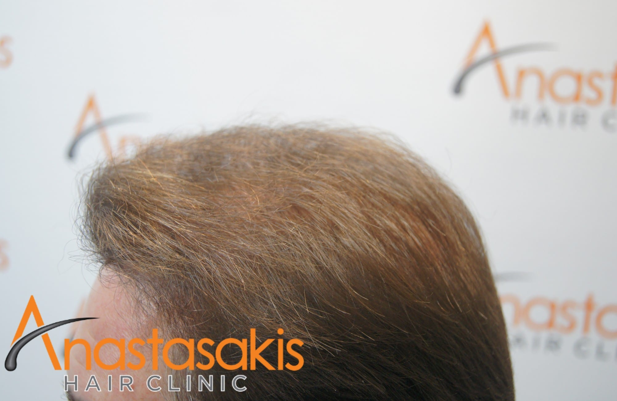 ασθενής μετα τη μεταμόσχευση μαλλιών με fut 3500 fus αριστερος κροταφος 2