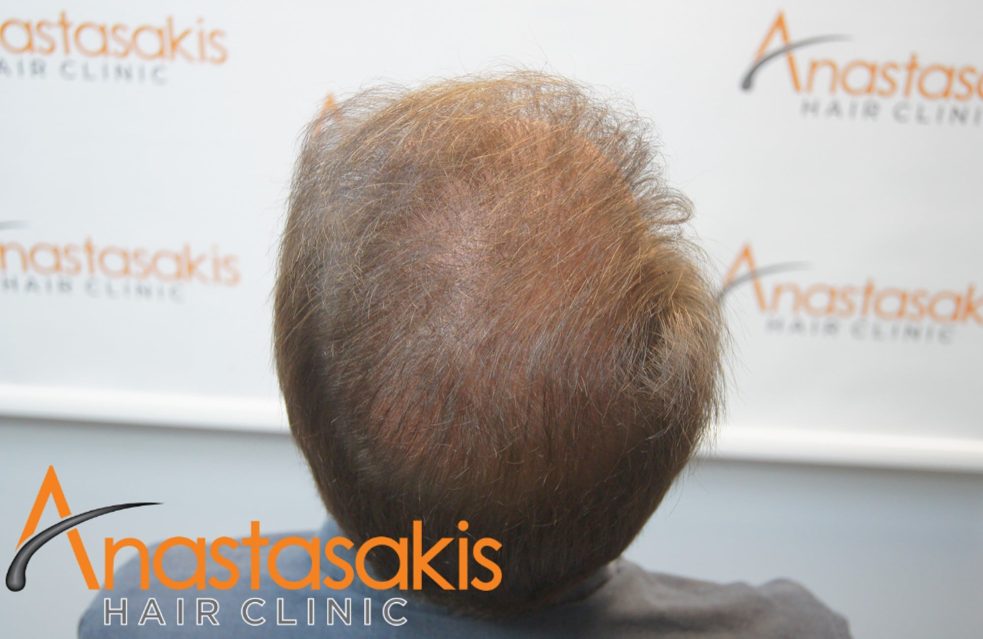 ασθενής μετα τη μεταμόσχευση μαλλιών με fut 3500 fus κορυφη