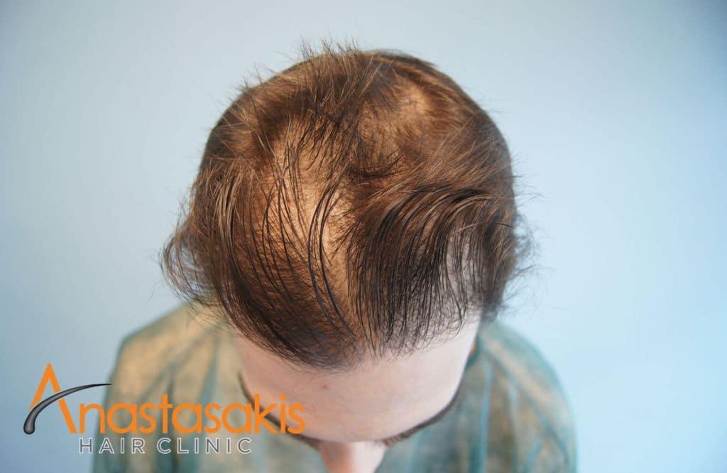 προσθια περιοχη ασθενούς πριν τη μεταμοσχευση μαλλιων
