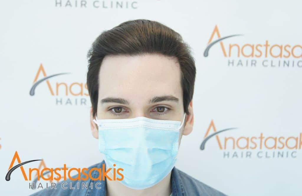 fullface ασθενούς 7 μηνες μετα τη μεταμοσχευση μαλλιων