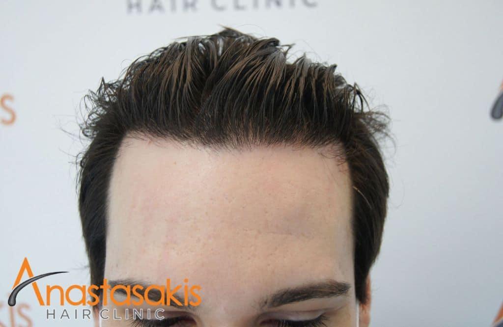 hairline ασθενούς 7 μηνες μετα τη μεταμοσχευση μαλλιων