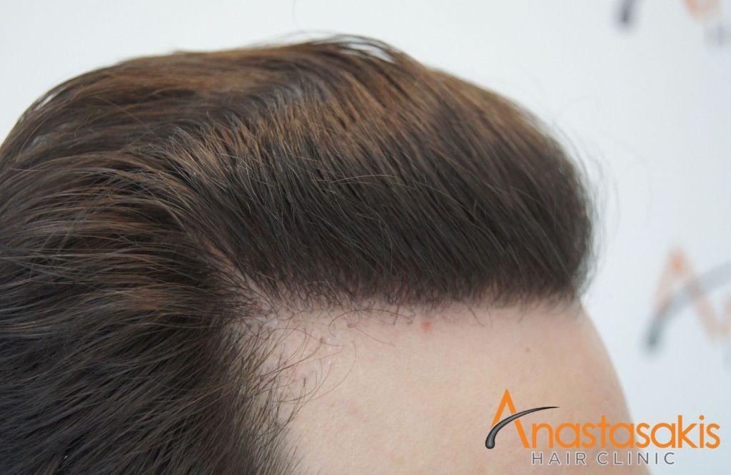 αριστερος κροταφος ασθενούς 7 μηνες μετα τη μεταμοσχευση μαλλιων