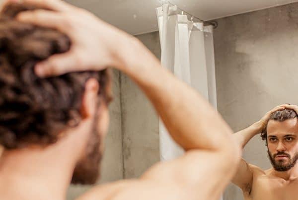 μαλλιά χωρίς μεταμόσχευση μαλλιών