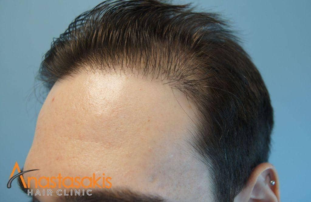 δεξης κροταφος ασθενούς πριν τη μεταμοσχευση μαλλιων