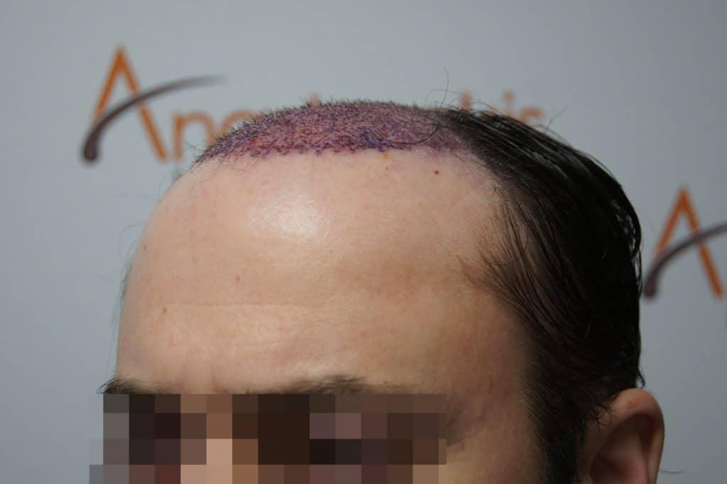 fut υποδοχές αμεσως μετά τη μεταμόσχευση μαλλιών, προφιλ