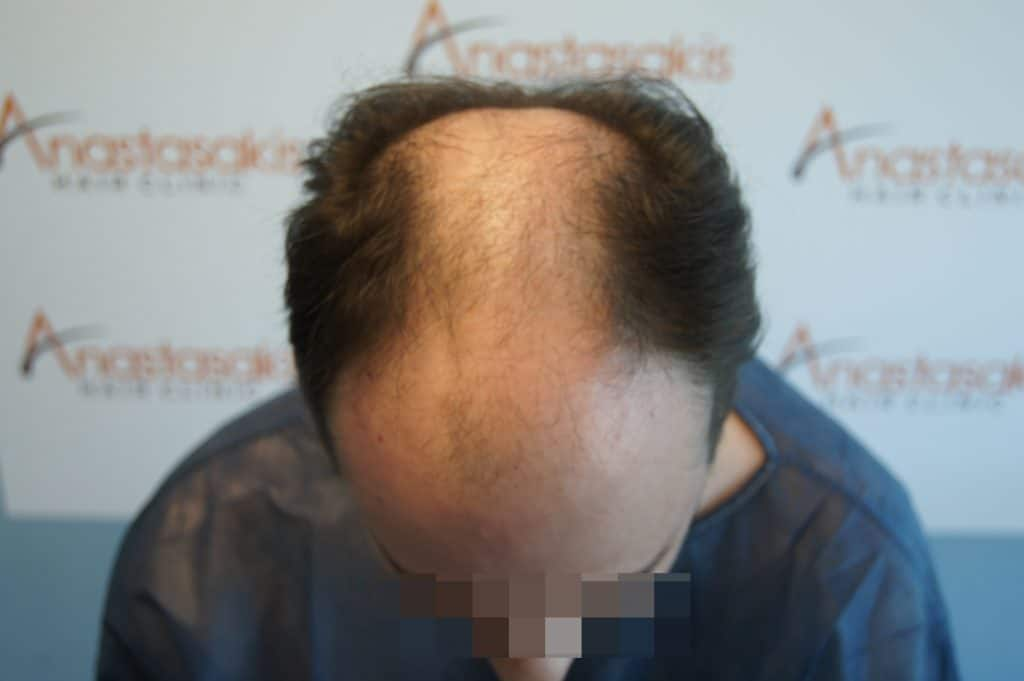 fut οι υποδοχές στη λήπτρια περιοχή αμέσως μετα τη μεταμόσχευση μαλλιών
