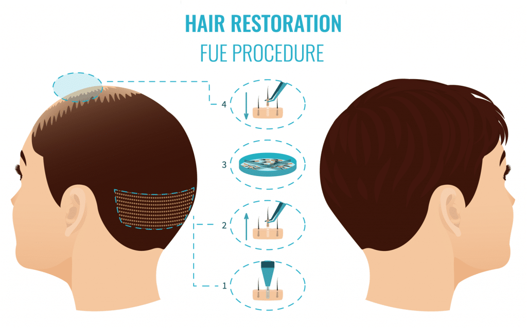 μεταμόσχευση μαλλιών με την τεχνική fue
