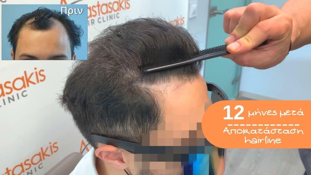 αποκατασταση hairline με 1860 fus 1 χρόνος μετα