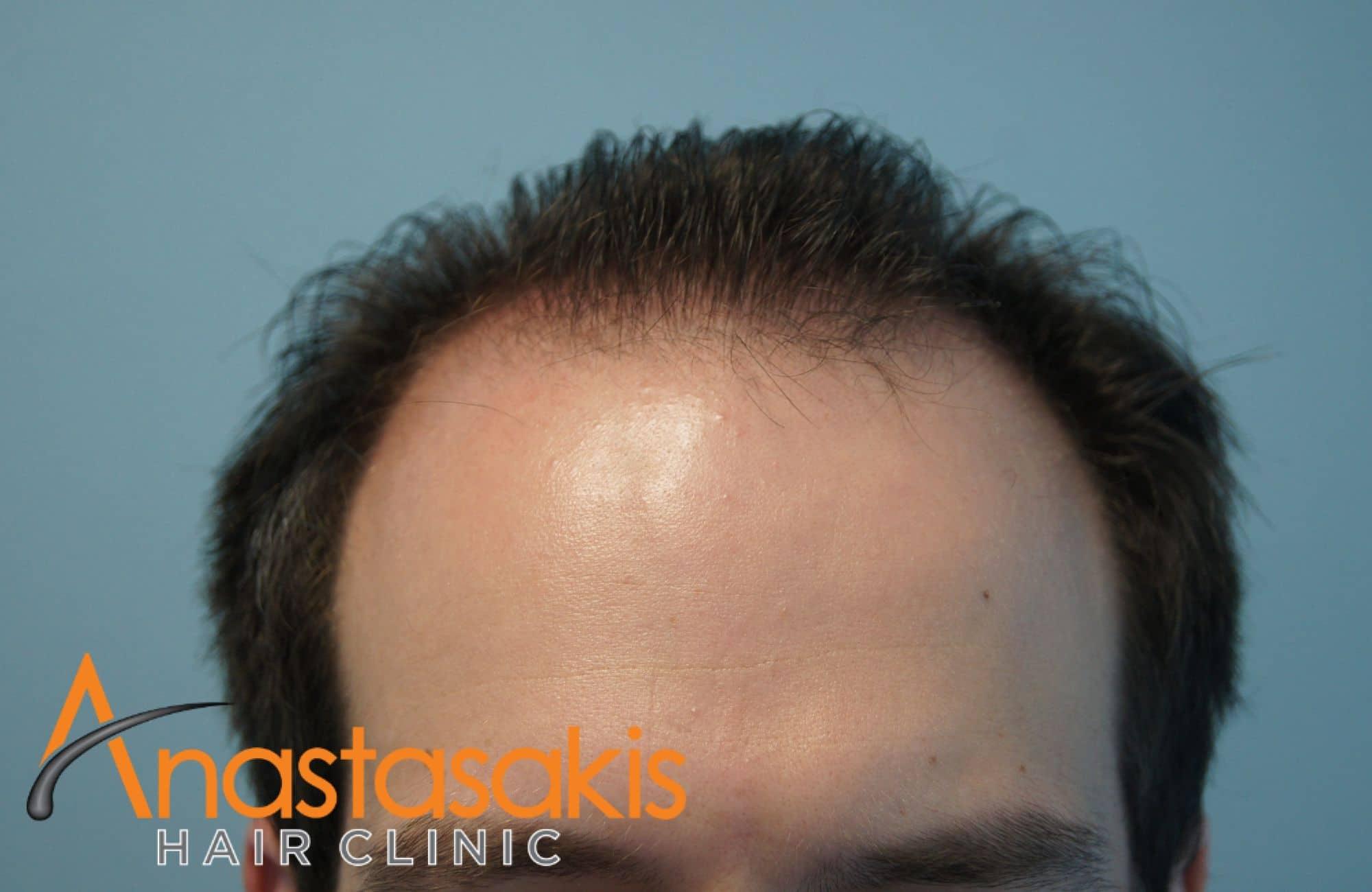 asthenis prin ti mm 2500fus hairline