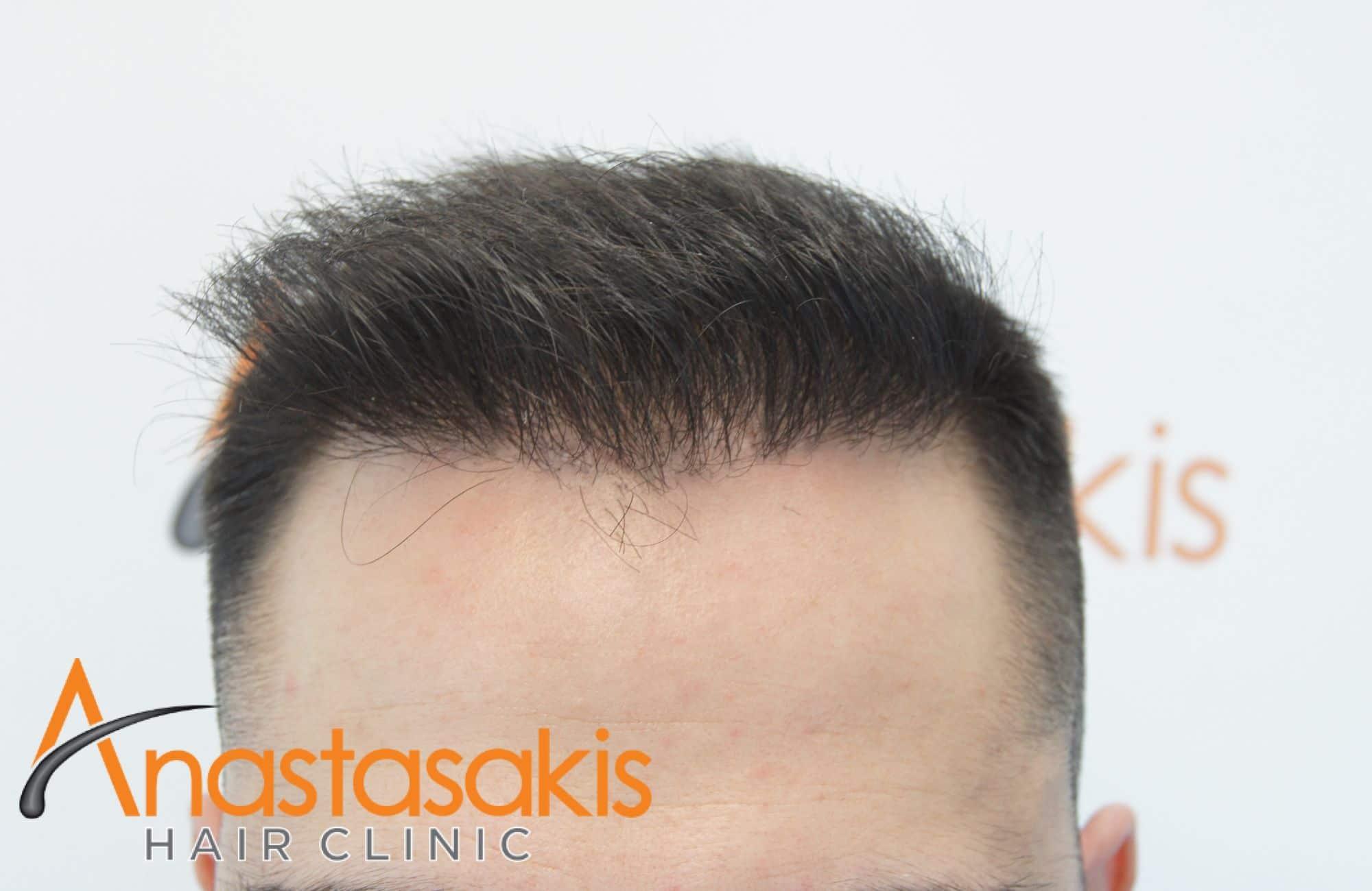 περιστατικο με 1477 fus 6 μήνες μετα την επεμβαση hairline