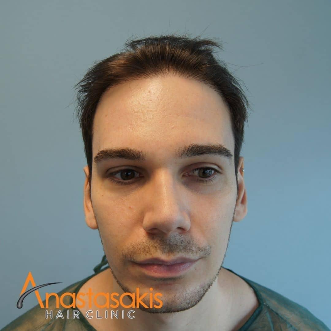 περιστατικό μεταμοσχευσης μαλλιων πριν - αρχική σελίδα