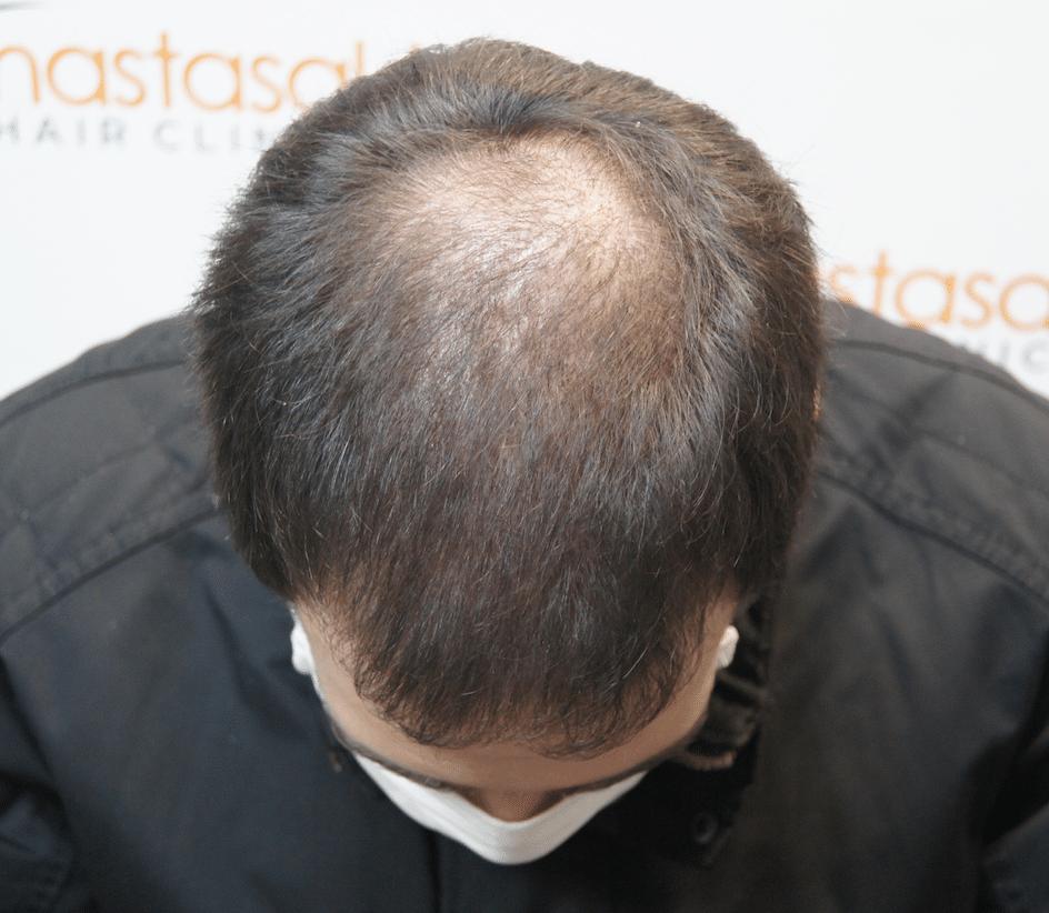 4ις μήνες μετά την επέμβαση μαλλιών