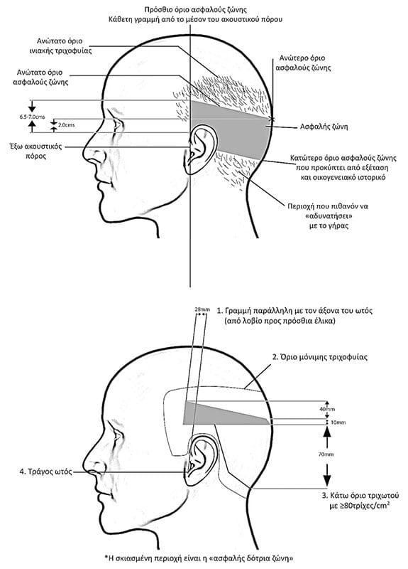 Μεταμόσχευση μαλλιών με FUE και FUT σχεδιαγραμμα