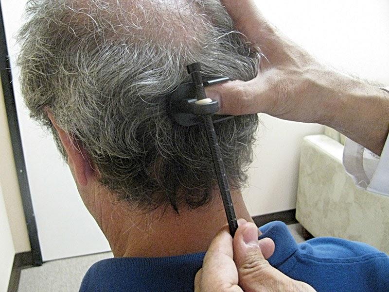 Μεταμόσχευση μαλλιών με FUE και FUT δότρια περιοχή