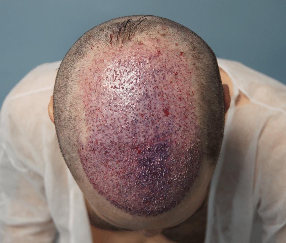 αμέσως μετά την επέμβαση μετανόσχευσης μαλλιών