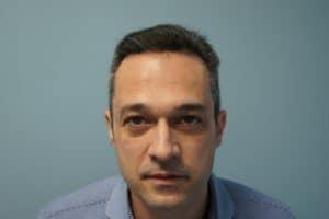 Μεταμόσχευση μαλλιών με FUE και FUT ασθενης 2