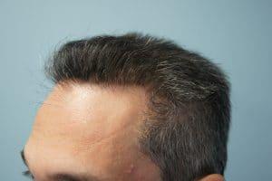 Μεταμόσχευση μαλλιών με FUE και FUT μετα 2