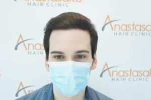 μετά τη μεταμόσχευση μαλλιών