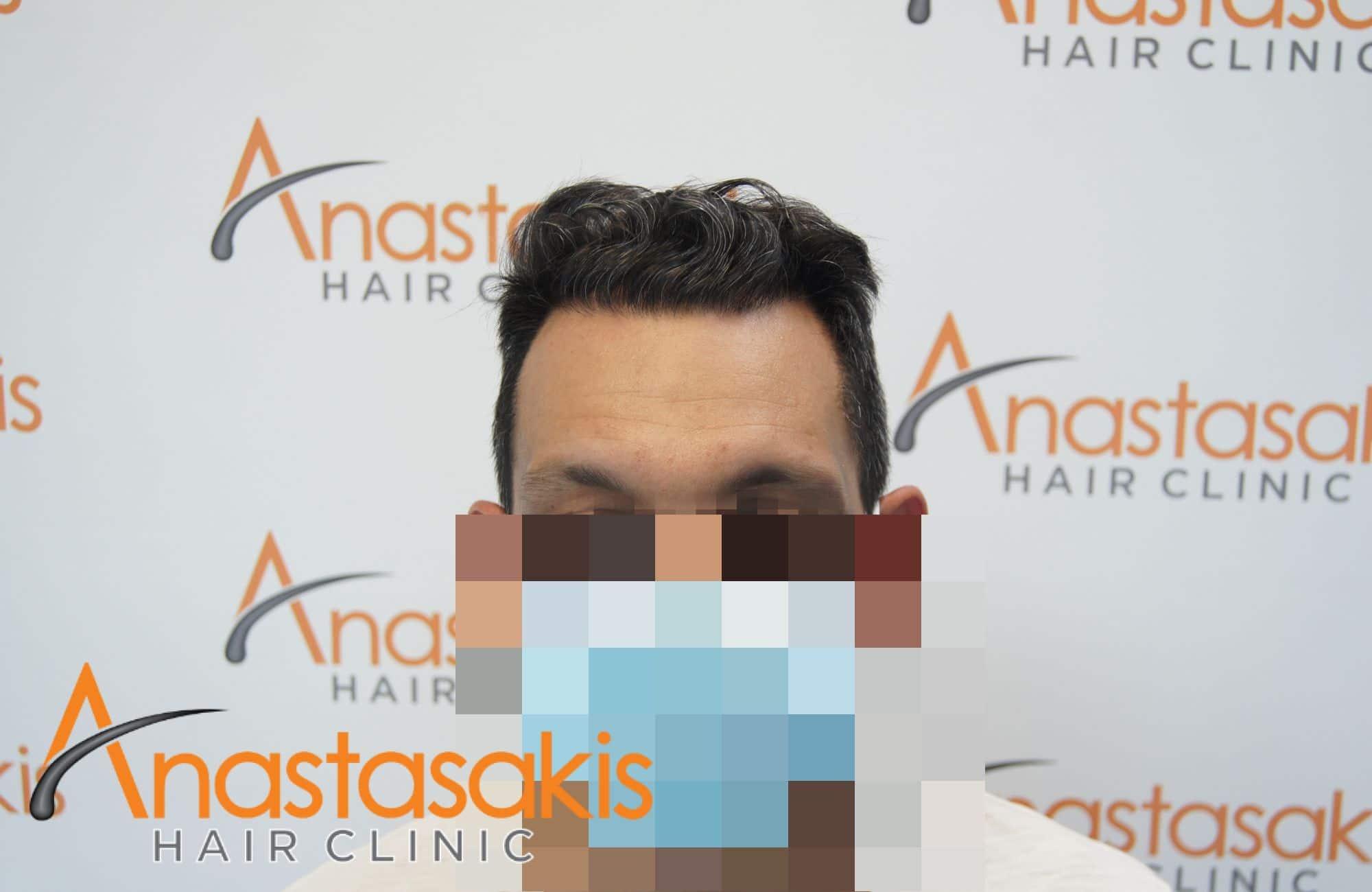 αποτελεσμα μεταμόσχευσης μαλλιών με 2211 τριχοθυλάκια - fullface