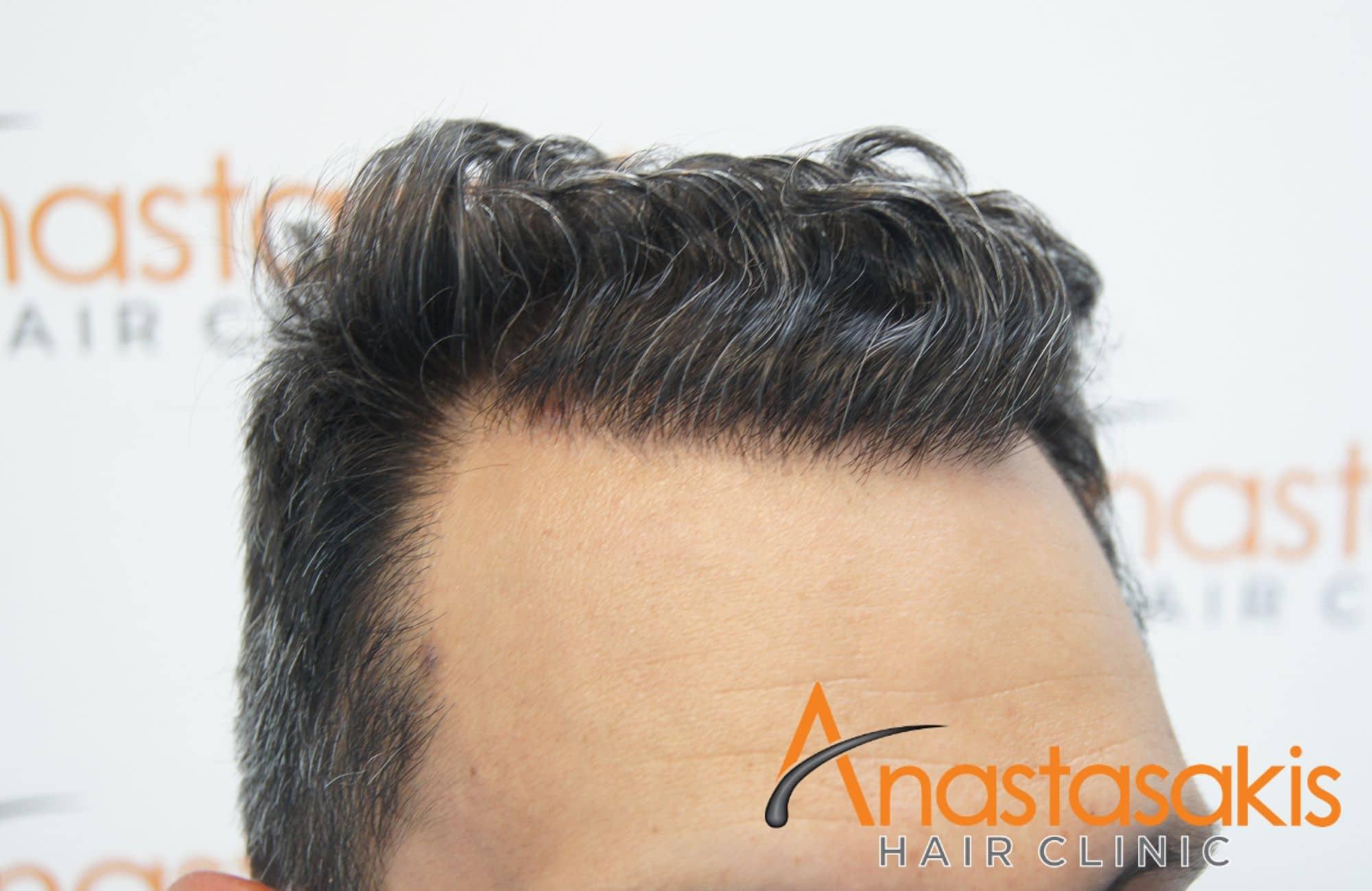 αποτελεσμα μεταμόσχευσης μαλλιών με 2211 τριχοθυλάκια - αριστερός κρόταφος