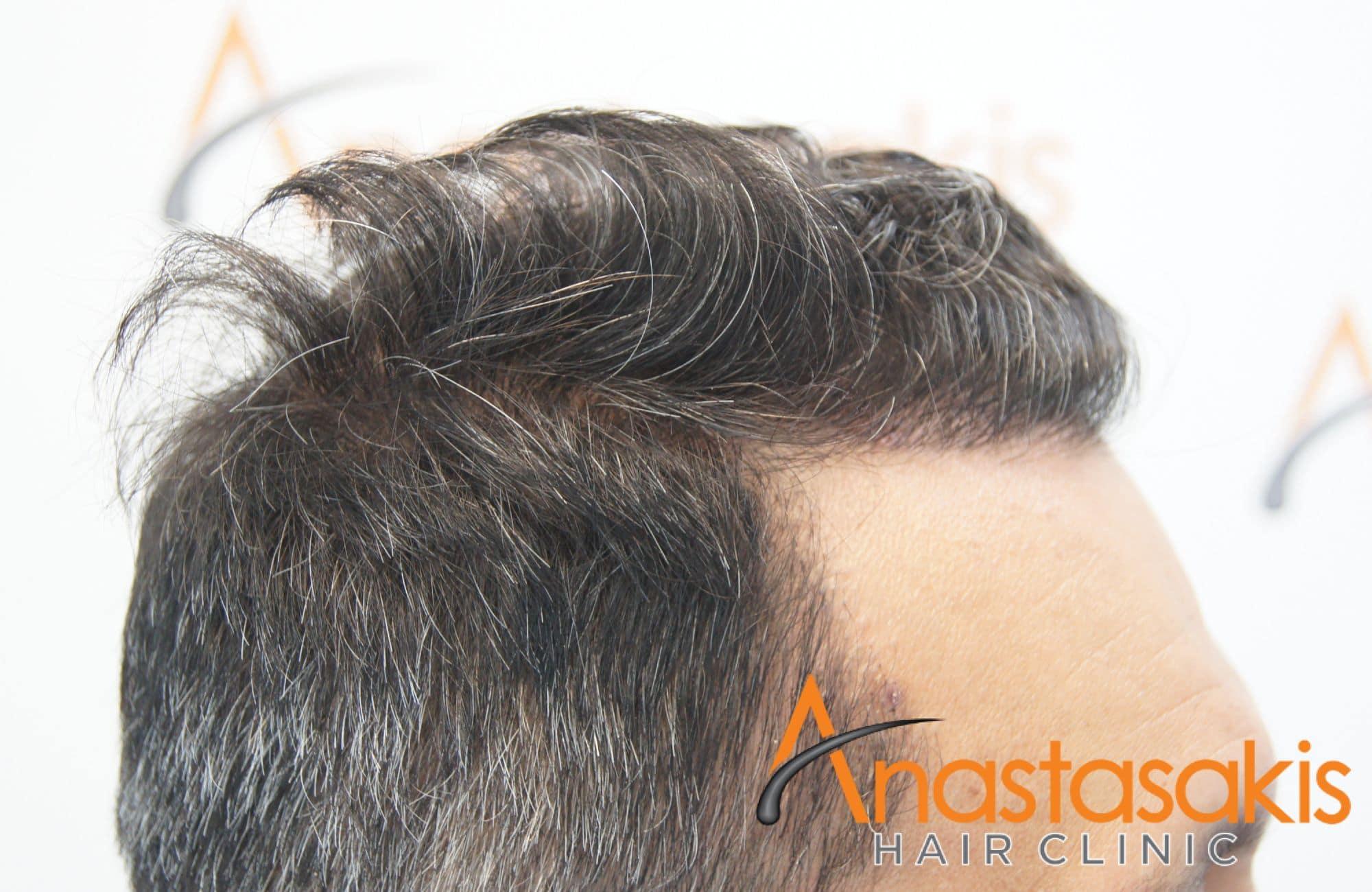 αποτελεσμα μεταμόσχευσης μαλλιών με 2211 τριχοθυλάκια - αριστερό προφιλ