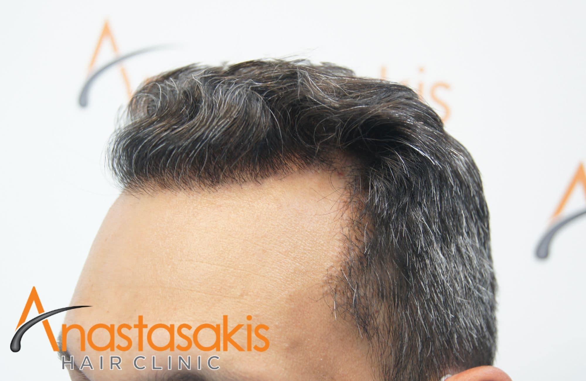 αποτελεσμα μεταμόσχευσης μαλλιών με 2211 τριχοθυλάκια - δεξής κρόταφος