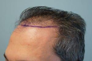 Μεταμόσχευση μαλλιών με FUE και FUT πριν 1