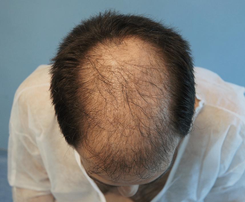 πριν την επέμβαση μεταμόσχευσης μαλλιών