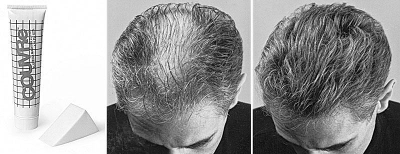 κάλυψη της τριχόπτωσης πριν και μετά