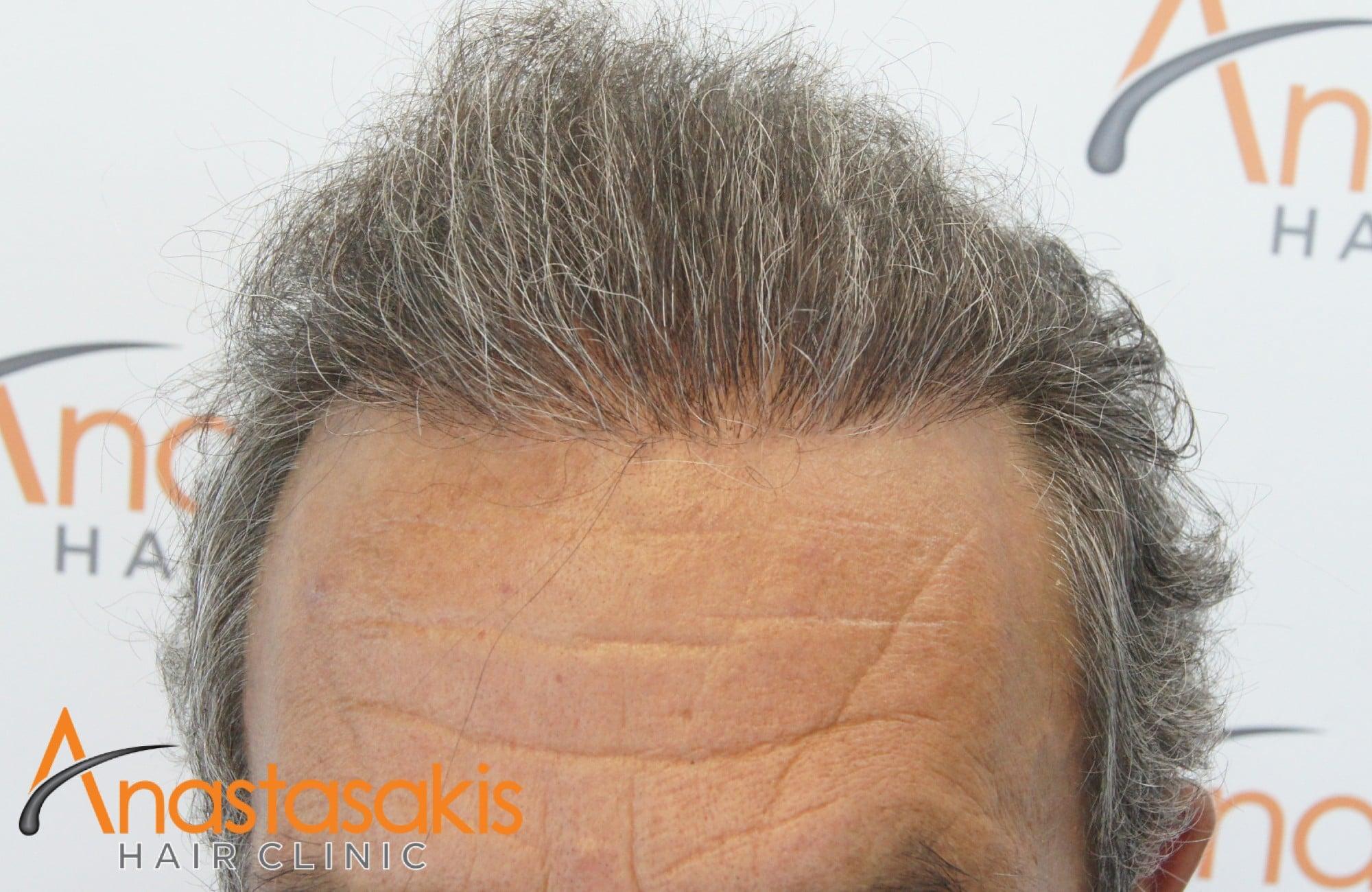 αποτελεσμα μεταμοσχευσης μαλλιων με 3964 fus - hairline