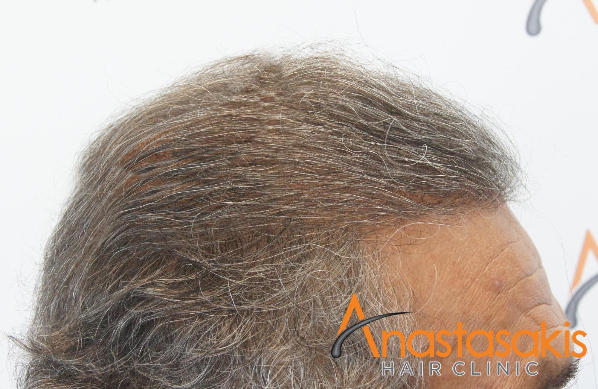 αποτελεσμα μεταμοσχευσης μαλλιων με 3964 fus - δεξι προφιλ