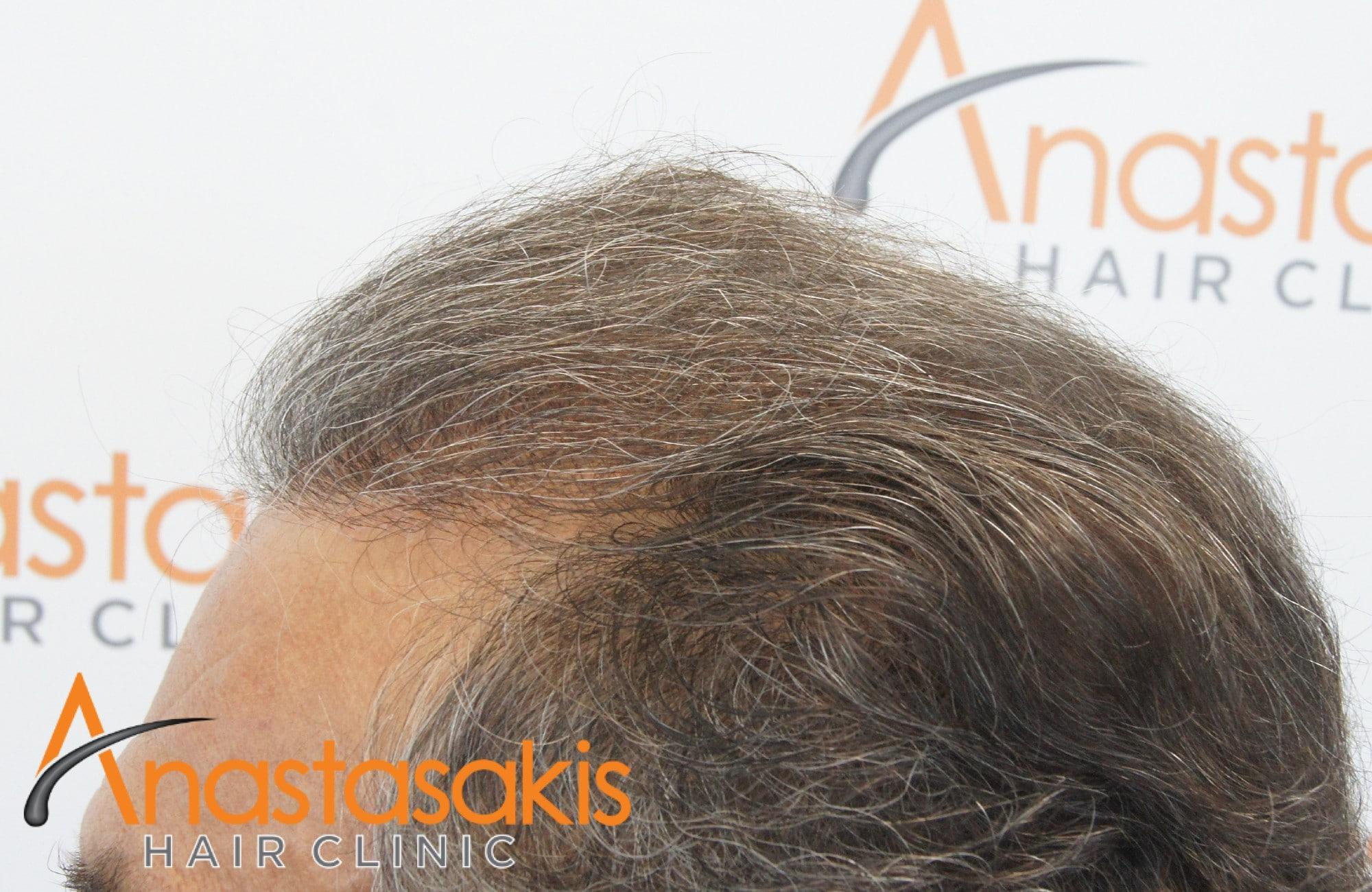 αποτελεσμα μεταμοσχευσης μαλλιων με 3964 fus - αριστερο προφιλ