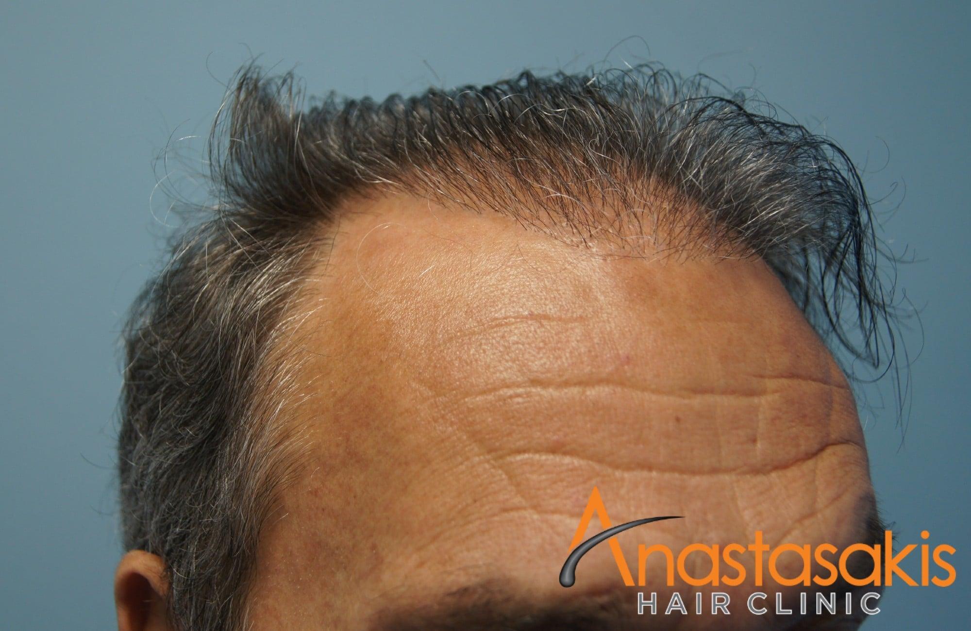 περιστατικο πριν τη μεταμοσχευση μαλλιων με 3964 fus - δεξης κροταφος