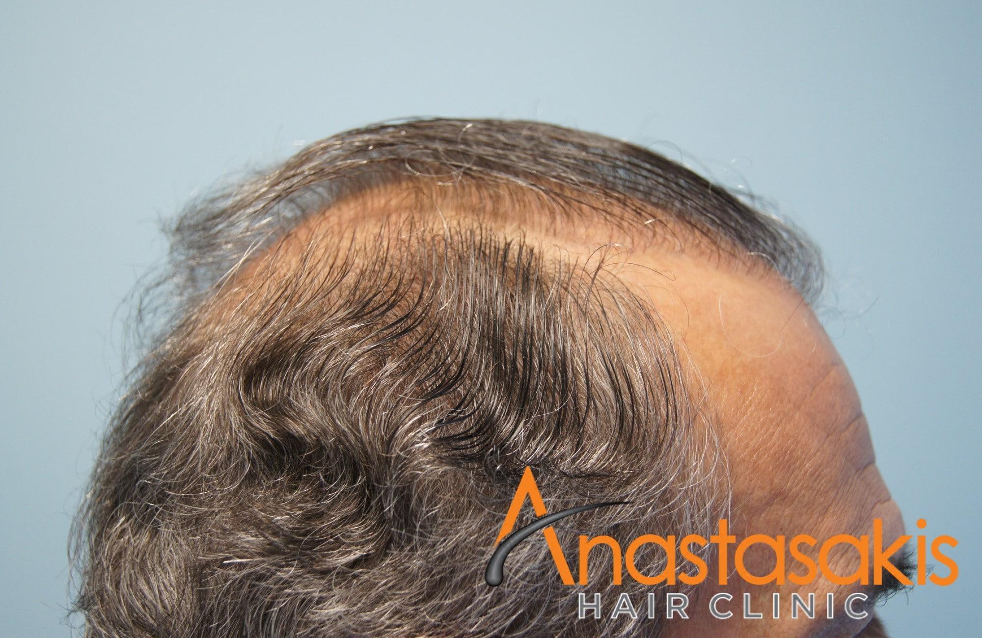 περιστατικο πριν τη μεταμοσχευση μαλλιων με 3964 fus - δεξι προφιλ
