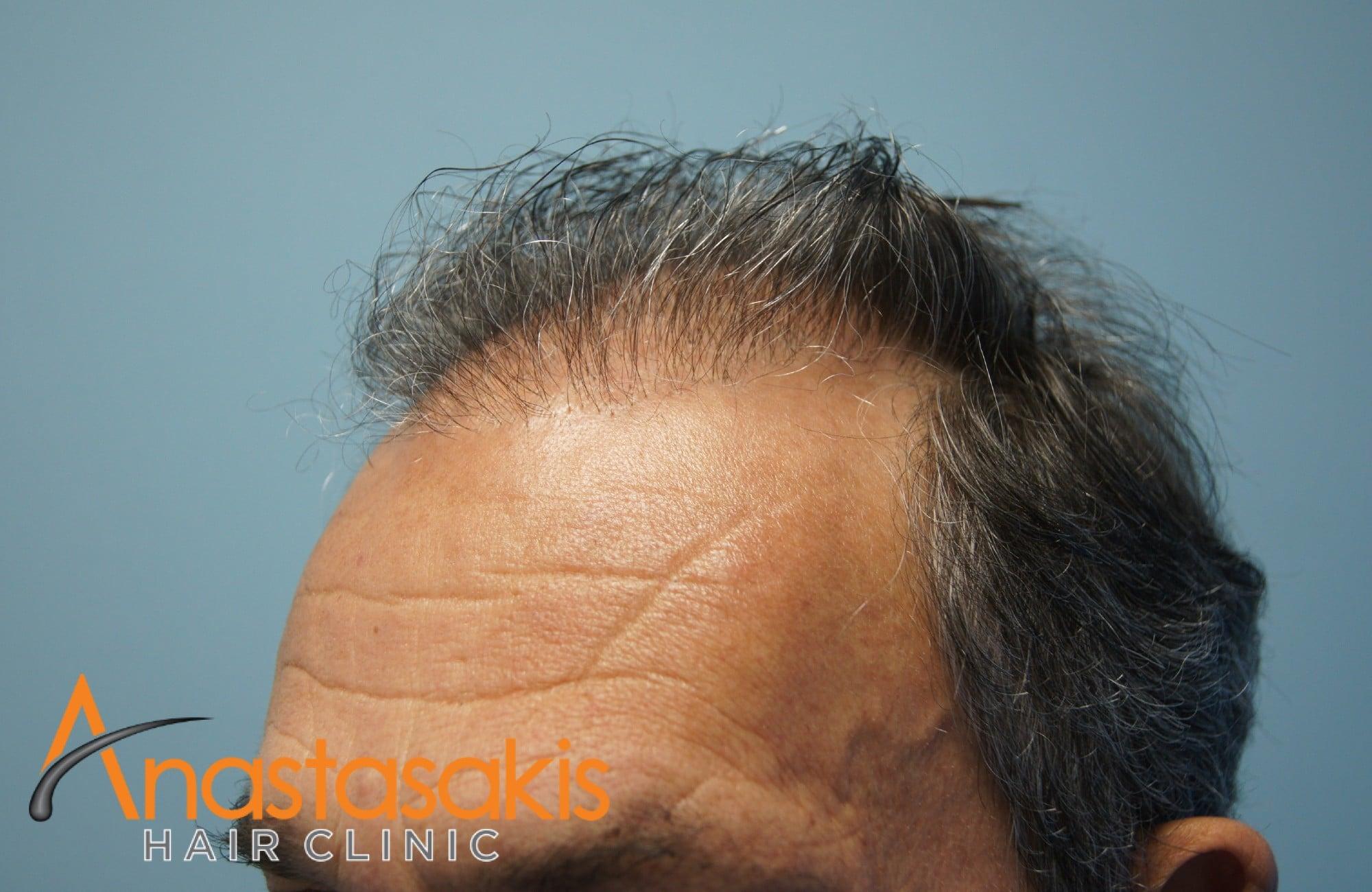 περιστατικο πριν τη μεταμοσχευση μαλλιων με 3964 fus - αριστερος κροταφος