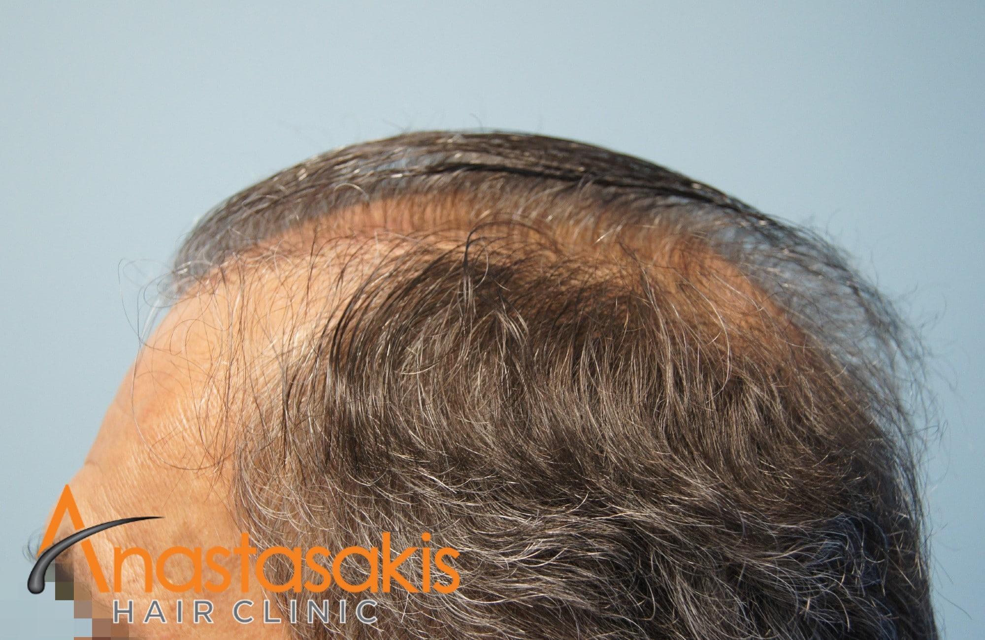 περιστατικο πριν τη μεταμοσχευση μαλλιων με 3964 fus - αριστερο προφιλ