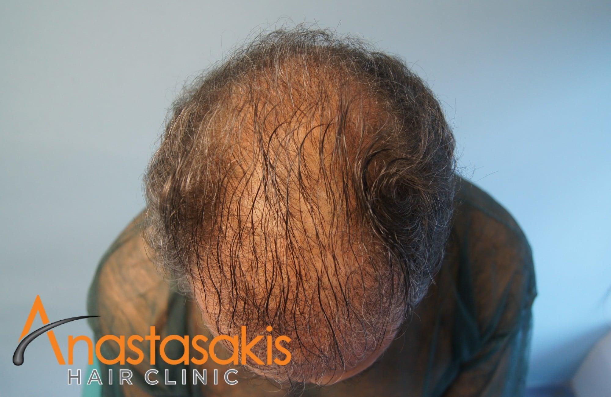 περιστατικο πριν τη μεταμοσχευση μαλλιων με 3964 fus - προσθια περιοχη