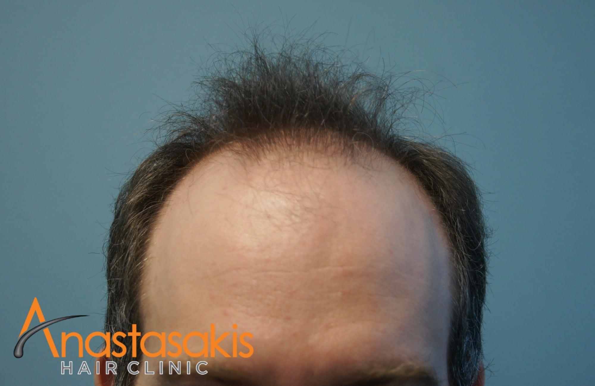 περιστατικο με 3500 fus - πριν τη μεταμόσχευση μαλλιών - hairline