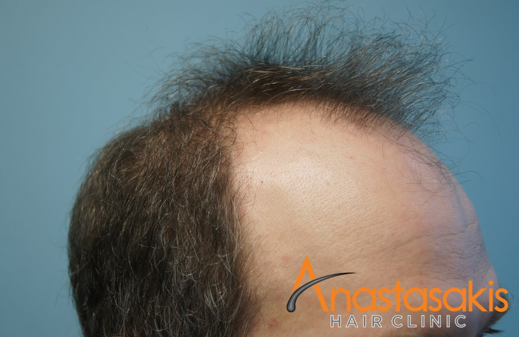 περιστατικο με 3500 fus - πριν τη μεταμόσχευση μαλλιών - δεξης κροταφος