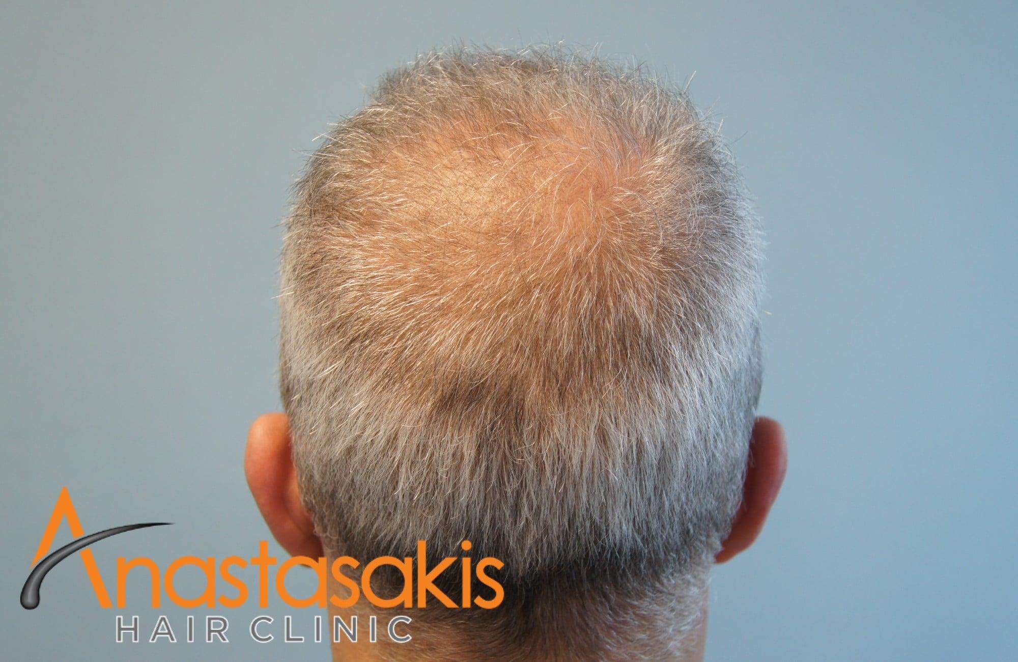 γκριζομάλης άνδρας πριν τη μεταμόσχευση μαλλιών με f.u.e. δοτρια