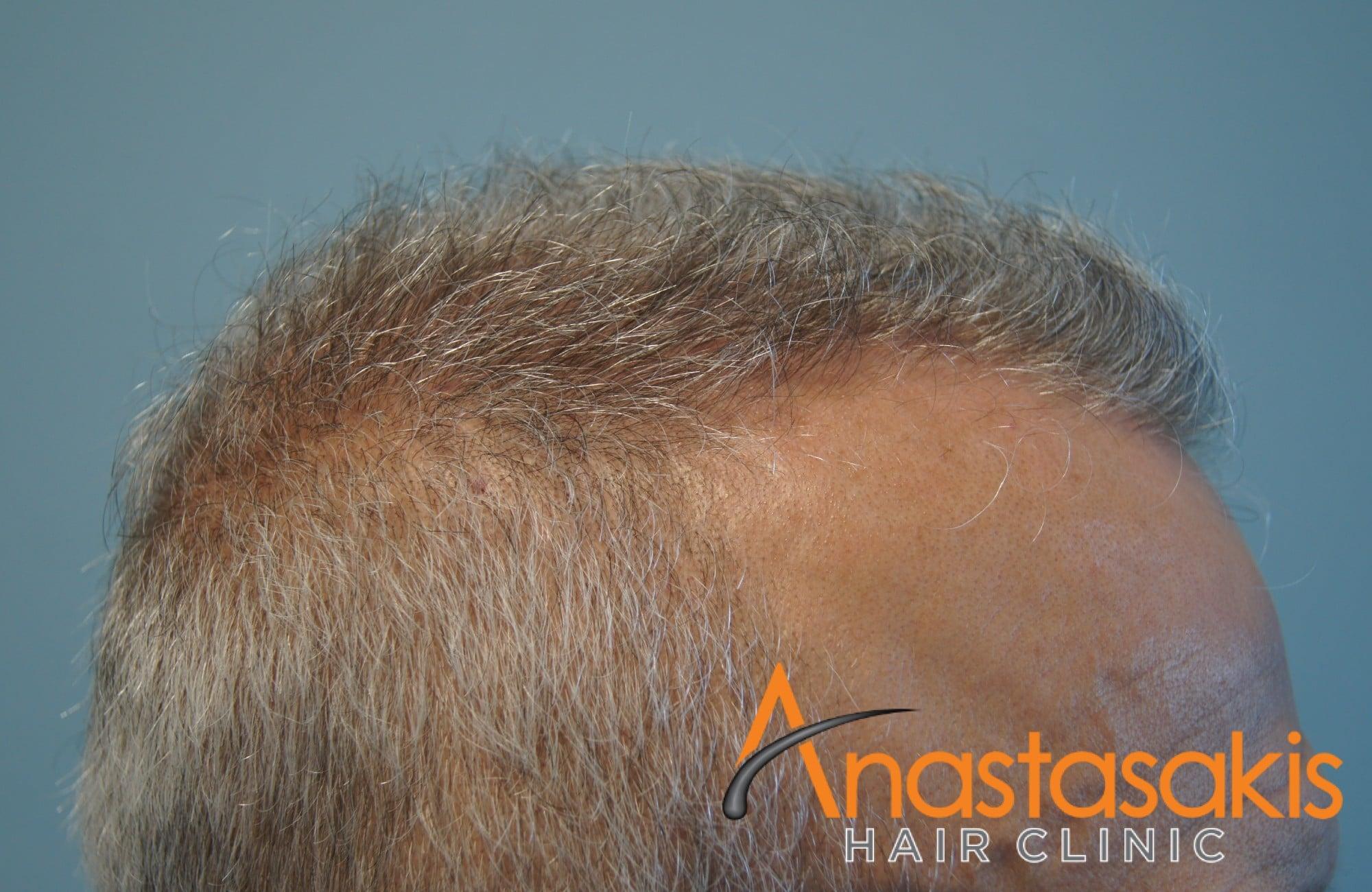 γκριζομάλης άνδρας πριν τη μεταμόσχευση μαλλιών με f.u.e. αριστεο προφιλ