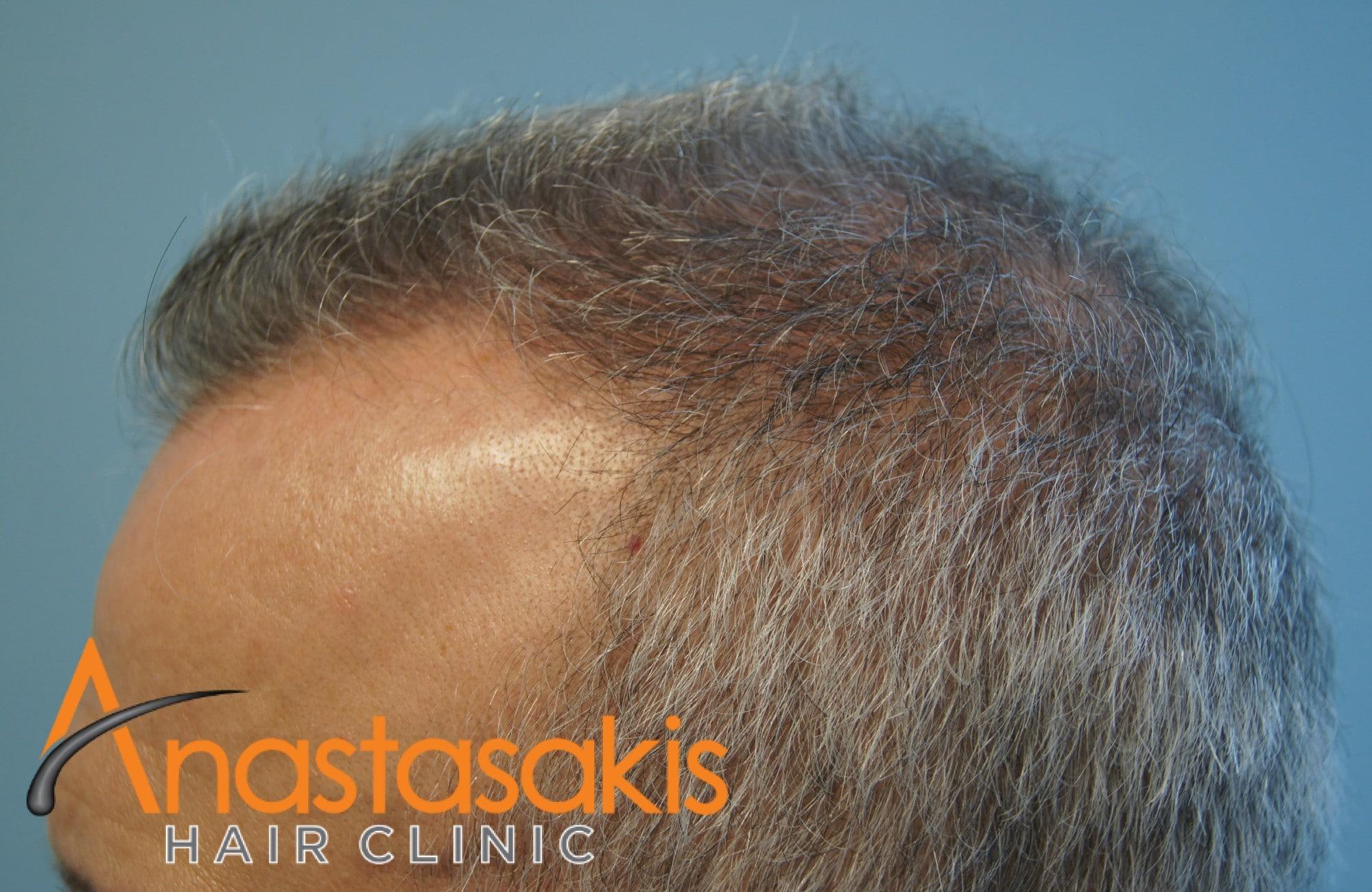γκριζομάλης άνδρας πριν τη μεταμόσχευση μαλλιών με f.u.e. δεξί προφιλ