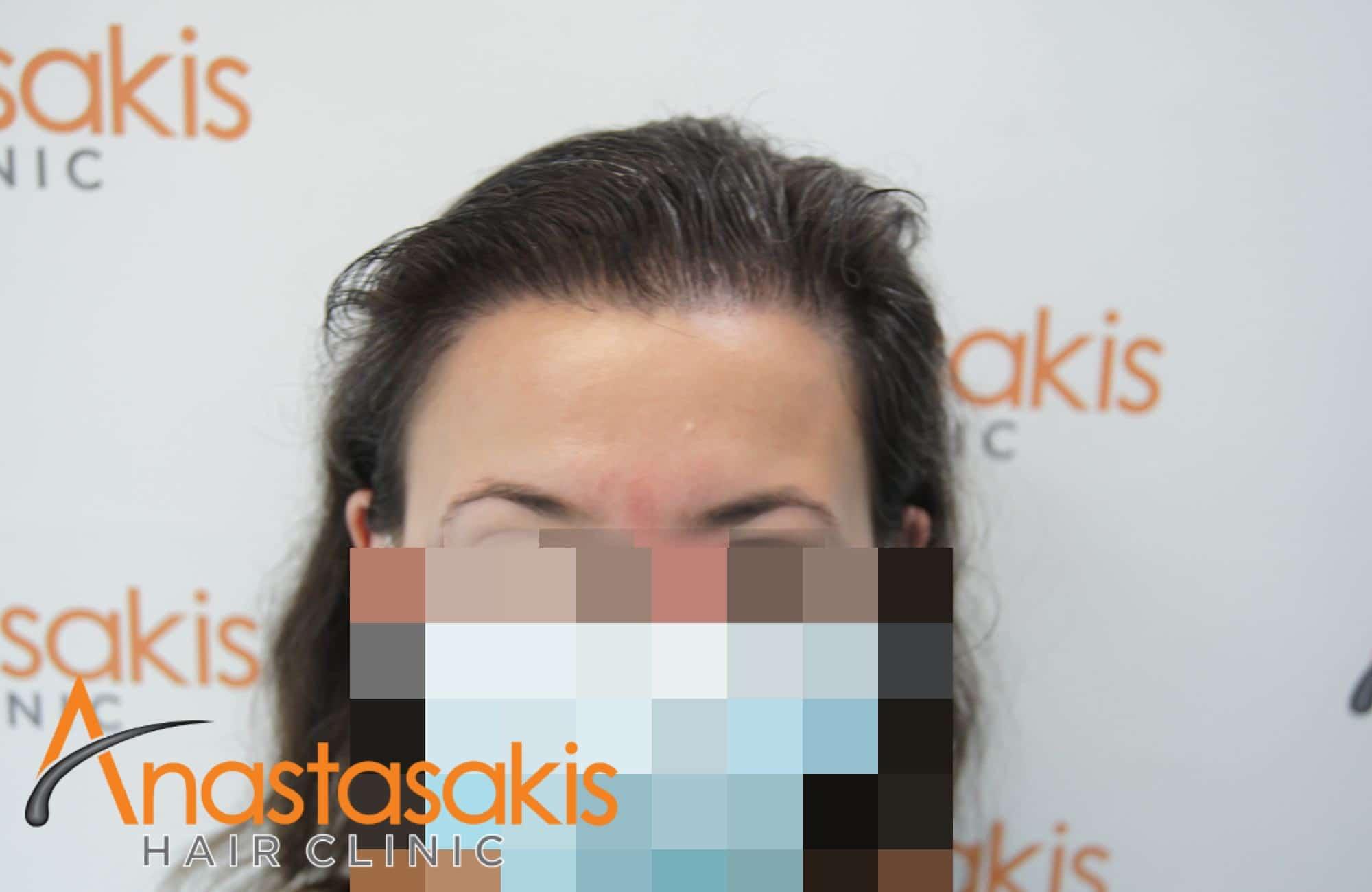 περιστατικό με 2600 fus - μετα τη μεταμόσχευση μαλλιών - γυναίκα - fullface