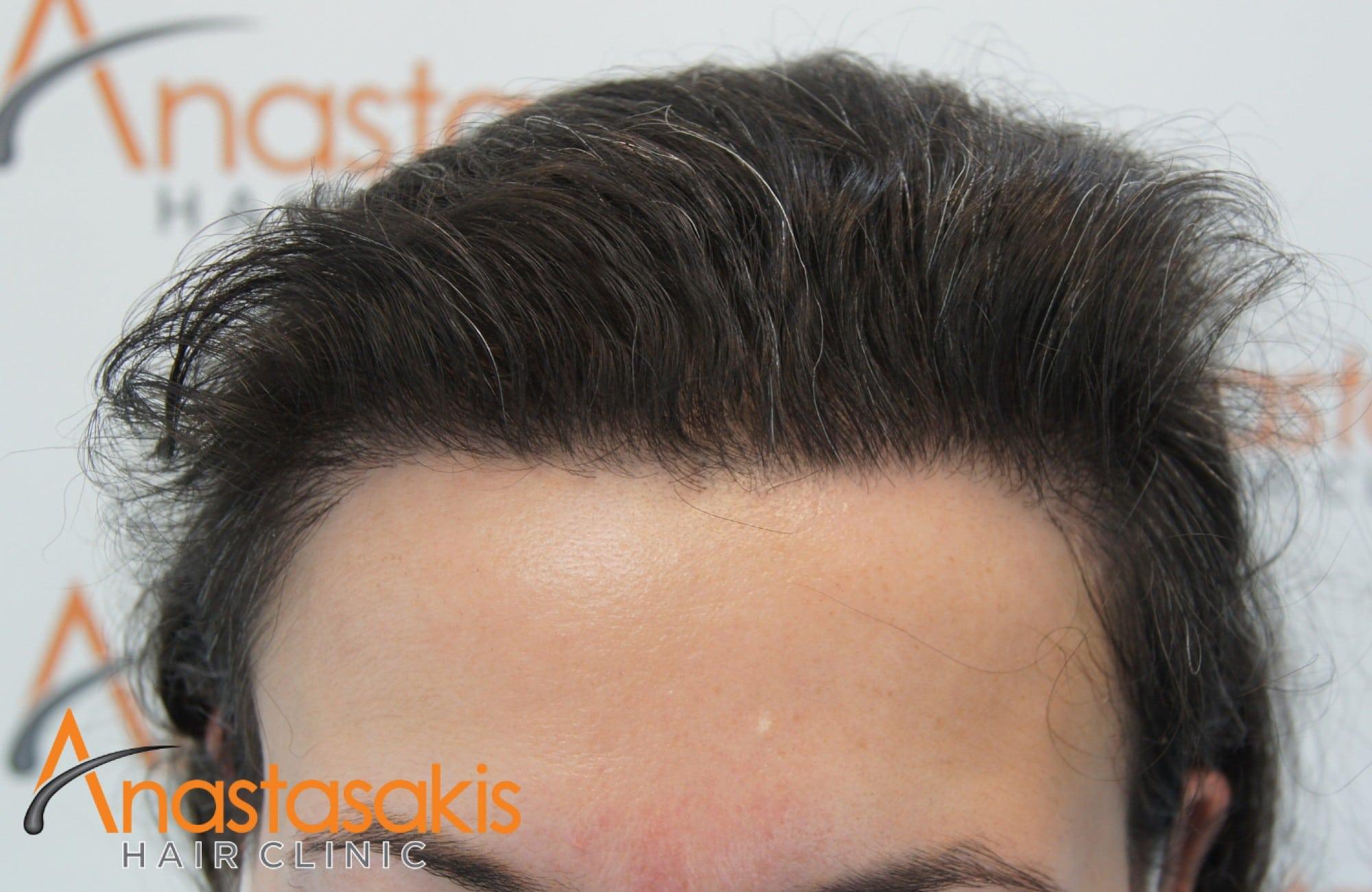 περιστατικό με 2600 fus - μετα τη μεταμόσχευση μαλλιών - γυναίκα - hairline