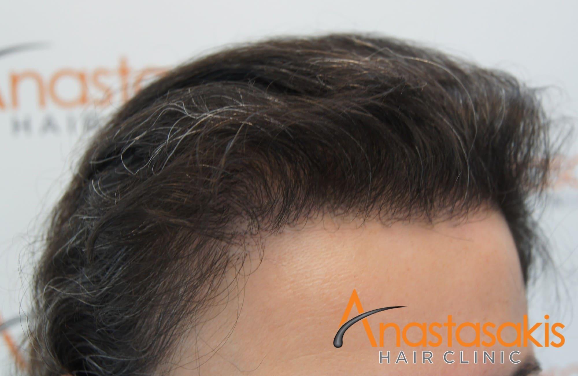 περιστατικό με 2600 fus - μετα τη μεταμόσχευση μαλλιών - γυναίκα - αριστερο προφιλ