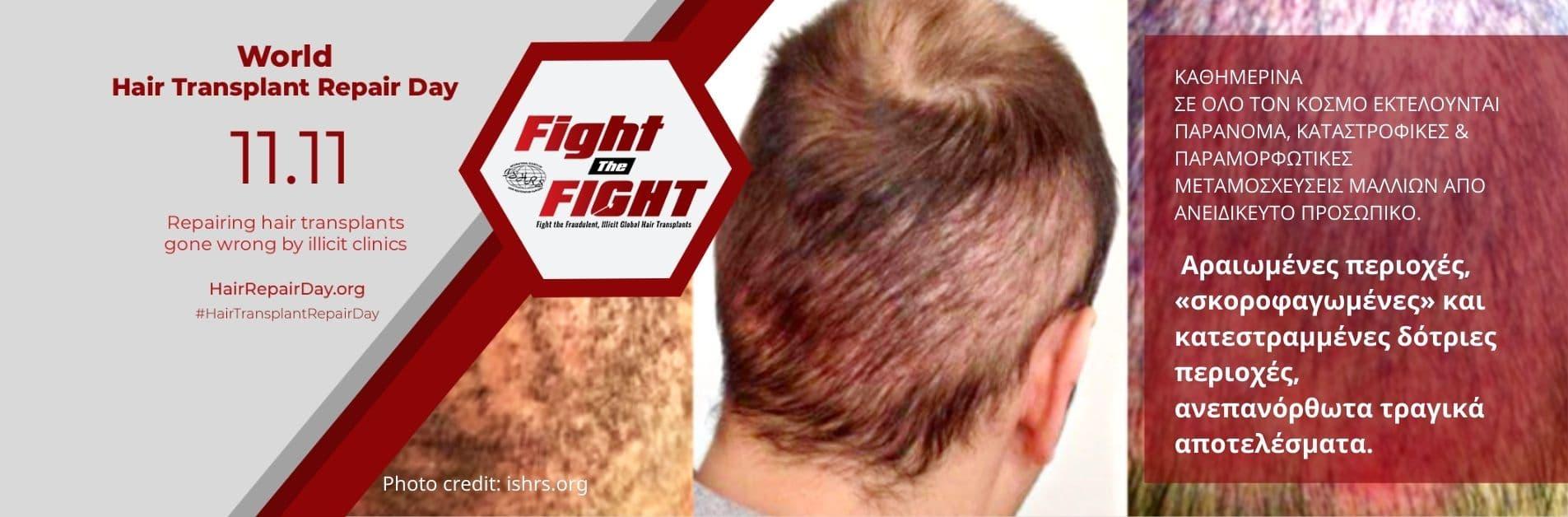 result of another bad hair transplantation