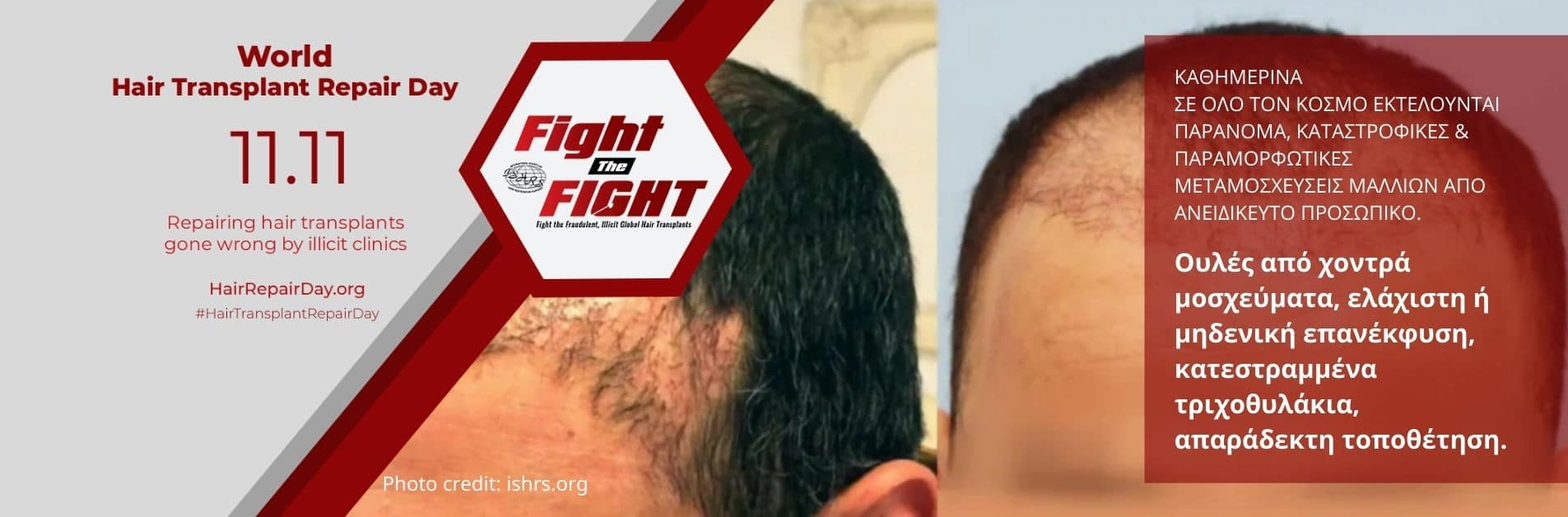 bad hair transplantation performed by a non-physician
